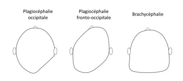 Plagiocephalie_Humeurdemoutard